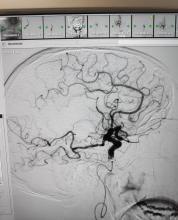 Imatge d'un estudi de neurologia.